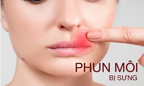 Mách bạn cách giảm phun môi bị sưng hiệu quả ngay tại nhà