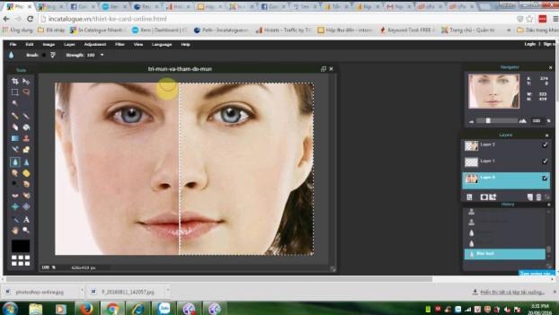 Tìm lại làn da mịn màng bằng 2 cách xóa mụn trên Photoshop