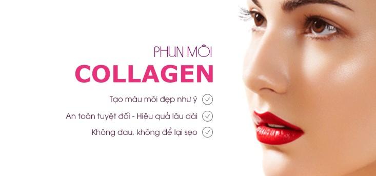 Những điều cần biết về phun môi collagen